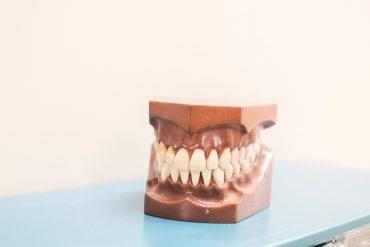 dental-model-showing-teeth